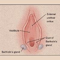 Penyakit Kista Bartholin